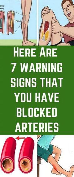 Here Are 7 Warning Signs You Have Blocked Arteries – Herbal Medicine Book Medicine Book, Herbal Medicine, Bad Circulation, Peripheral Artery Disease, Low Blood Pressure, Leg Pain, Warning Signs, Physical Activities, Health And Nutrition