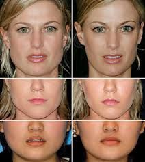 Asian Jaw Reduction Surgery has seen many invasive techniques that ...
