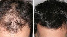 Con 3 cucharadas diarias de este remedio podrás recuperar el cabello perdido por la calvicie en poco tiempo. ¡Comienza hoy mismo!