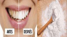 Deshacerse de los temidos dientes amarillos para lograr una sonrisa blanca y radiante es algo que muchas personas ansían. Las manchas amarillas