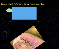 Fungal nail infection laser treatment cost - Nail Fungus Remedy. You have nothing to lose! Visit Site Now