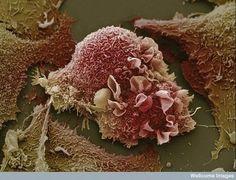 Fotos aumentadas con el microscopio de las cosas cotidianas que vemos en nuestro alrededor y otras no tanto. Cuerpo Humano. Células cancerosas del pulmón. Http://www.fayerwayer.com/up/2009/03/fw-1.jpg. Coágulo de sangre....