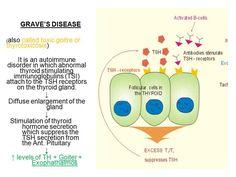 Foto: Grave's este o boală autoimună (denumită și Gușă toxică ori tirotoxicoza) undeHormonul de stimulare a imunoglobulinei (TSI) atașată receptorilor TSH a G