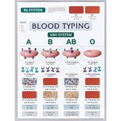 medical technology news Blood Type Chart, Blood Types, Medizinisches Labor, Nursing Labs, Nursing School Notes, Medical Laboratory Science, Medical Technology, Technology News, Energy Technology