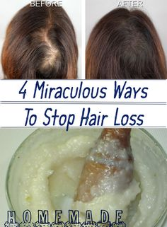 4 Miraculous Ways To Stop Hair Loss