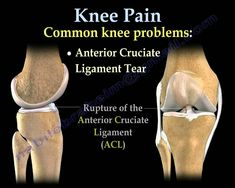 Knee and back pain treatment clinic Near me in New Jersey. Our Harvard trained local pain doctors can help you today. With New Jersey Pain Treatment Center, you're in good hands. Hip Problems, Stomach Problems, Anterior Cruciate Ligament Tear, Physical Therapy Humor, Pilates, Back Doctor, Referred Pain, Knee Problem, Knee Arthritis