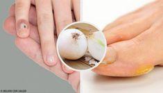 Eelt op je handen en voeten verwijderen met natuurlijke middelen - Gezonder Leven Prevent Wrinkles, Anti Aging Cream, Homemade Beauty, Face Skin, Remedies, Herbs, Health, Youtube, Dieting Tips