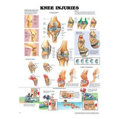 Knee injuries