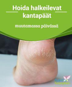 Hoida halkeilevat kantapäät muutamassa päivässä   #Halkeilevat #kantapäät ovat merkki kuivista, huonosti #hoidetuista jaloista.  #Luontaishoidot