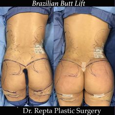 Mom makeover, aka tummy tuck and breast augmentation. This patient has a great … - Plastic Surgery Body Sculpting Surgery, Body Surgery, Tummy Tuck Surgery, Mini Tummy Tuck, Tummy Tucks, Tummy Tuck Before After, Tummy Tuck Tattoo, Mommy Makeover, Botox Injections