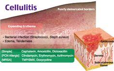 Cellulitis.  DM is RF.