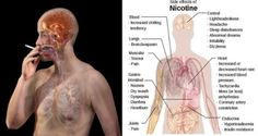 Smoking is a detrimental habit that harms health to a great extent. Nicotine in cigarettes causes issues such as lung damage,hypertension and heart issues. It also accelerates metabolic syndrome, diab