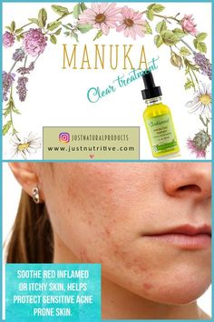 There are many acne products in the market that claim to be the best but what's the point of using treatment after treatment when they only work temporarily. Often these are made full of harsh chemicals that may leave your skin worse than before.