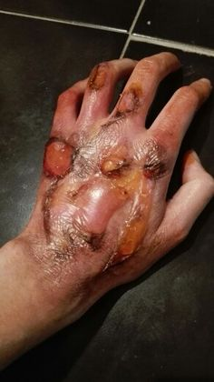 Simulated burns - Image only Horror Makeup, Zombie Makeup, Scary Makeup, Sfx Makeup, Costume Makeup, Special Makeup, Special Effects Makeup, School Looks, Prosthetic Makeup