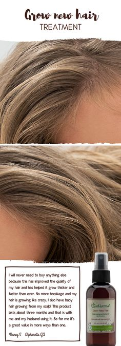 I will never need to buy anything else because this has improved the quality of my hair and has helped it grow thicker and faster than ever. No more breakage and my hair is growing like crazy. I also have baby hair growing from my scalp! This product las Long To Short Hair, Long Hair Styles, How To Grow Your Hair Faster, Grow Hair, Grow Baby Hair, Baby Hair Growth, Grow Thicker Hair, Trendy Hairstyles, Black Hairstyles
