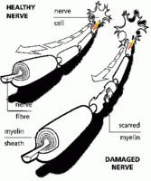 Information of what is CIDP nerve disease