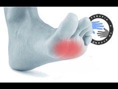 Metatarsalgia, masaje y ejercicios para aliviar el dolor / Fisioterapia a tu alcance