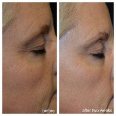 Try one of our newest age reversal treatment creams. Guaranteed to make you look 5 to 10 years younger in 30 days.