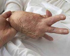 Facts About Severe Rheumatoid Arthritis