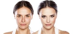 10 Amazing Natural Anti Aging Skin Care Solutions For You