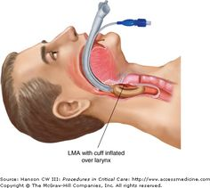 laryngeal mask airway placement methods in pediatric care After insertion of a laryngeal mask airway (lma) in the emergency department, an adult male patient regurgitates you should immediately: tube blocked by mucus plug.