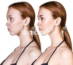 7 New Methods To lose Face Fat.