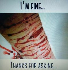 I'm fine... thanks for asking...