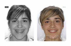 facial therapist Maxilo