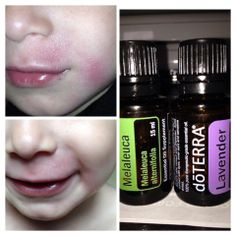 For Eczema = 1 TBSP. coconut oil to 3 drops of Lavender and 2 drops of Melaleuca and the top picture is last night and just 10 hours later is the bottom picture. Amazing!! All natural, no side effects and I don't have to worry about it getting in his mouth or nose.