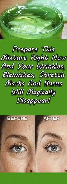 Prepare This Mixture Right Now And Your Wrinkles, Blemishes, Stretch Marks And Burns Will Magically Disappear! Prepare This Mixture Right Now And Your Wrinkles, Blemishes, Stretch Marks And Burns Will Magically Disappear! Face Care, Body Care, Beauty Care, Beauty Hacks, Diy Beauty, Beauty Box, Beauty Makeup, Face Beauty, Homemade Beauty
