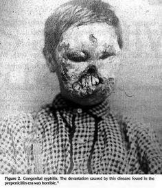 Congenital syphilis before the antibiotic era
