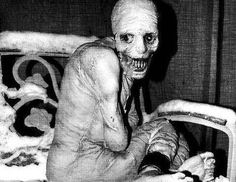 "The Russian Sleep Experiment - occurred in the 1940's when political prisoners were allegedly exposed to toxic gas, which was supposed to keep the subjects awake for a targeted 30 days. Only halfway through the experiment, there were reports that the subjects had started eating each other and even themselves. Subjects developed superhuman strength and were filled with rage. When finally restrained and asked what he was, one of the subjects replied ""Madness""."