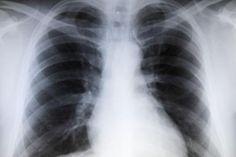 Pesquisadores estendem uso de álcool perílico a tratamento de câncer de pulmão