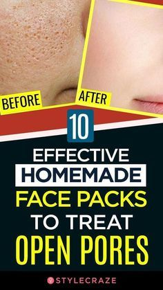 10 Effective Homemade Face Packs To Treat Open Pores Homemade Face Pack Eye Skin Care Homemade Face
