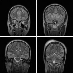 MRI Findings in Attempted Hanging - Diagnostic Imaging