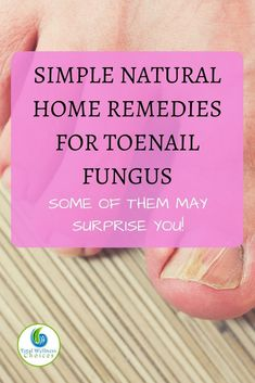 9 Simple Natural Home Remedies for Toenail Fungus that May Surprise You! via @wellnesscarol