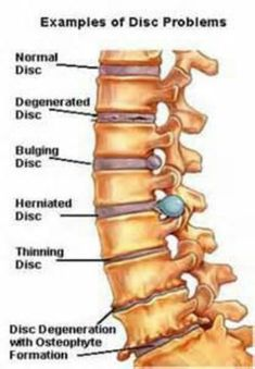 Common disc problems of the spine.
