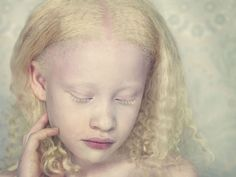 """Gustavo Lacerda Creates New Beauty Standard with """"Albino"""" Series. Personally, anyone that thinks that this young girl's albinism is a """"defect"""" needs to re-evaluate their concepts of beauty!"""