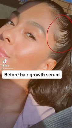 Are you a new mom and looking for postpartum hair loss remedies? If so, take a look at these hair loss remedies that will help with postpartum hair regrowth. Hair loss after pregnancy can look pretty bad, I know because I lived it. But after reading these hair loss tips and after using this hair growth oil i was able to control hair fall in only one month. Now my hair cant stop growing! Click to read more about this hair growth serum that is going to stop the hair thinning and balding! Hair Loss During Pregnancy, Hair Loss After Baby, Baby Hair Loss, Best Hair Loss Treatment, Postpartum Hair Loss, Hair Loss Causes, Hair Loss Remedies, Hair Growth Oil, Hair Regrowth