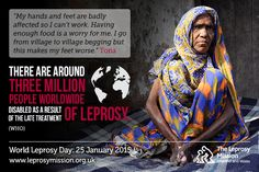 There are around three million people worldwide disabled as a result of the late treatment of leprosy.  www.worldleprosyday.org.uk