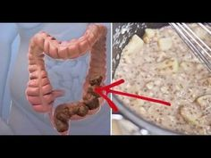 VIDEO: HOMEMADE MIXTURE THAT WILL CLEAN YOUR COLON OF TOXIC WASTE ALMOST IMMEDIATELY - Ourhealthyhouse