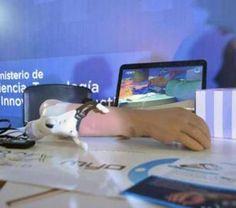 Bioingenieros Argentinos crean un brazo biónico