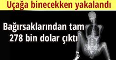 Bağırsaklarından tam 278 bin dolar çıktı http://www.cumhuriyet.com.tr/haber/dunya/369271/Bagirsaklarindan_tam_278_bin_dolar_cikti.html…