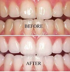 Omg who ever said they didn't want white teeth? no peroxide no bleach. whitens brighter http://nsomg1.com