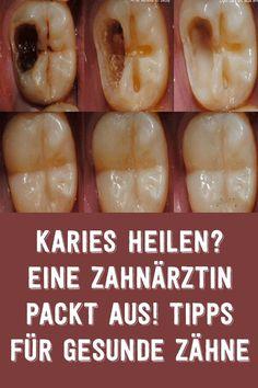 Karies heilen? Eine zahnärztin packt aus! Tipps für gesunde zähne