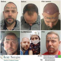 Best Hair Transplant Doctor in Turkey - Top Aesthetic Dermatology Trends 2020 Eyebrow Transplant, Hair Transplant Results, Hair Transplant Surgery, Best Hair Transplant, Good Doctor, Doctor In, Zen, Euro, Hair Restoration