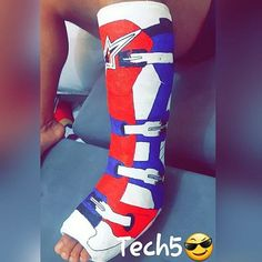 If you're going to have to have a cast, you might as well make it awesome.