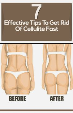 WE HEART IT: 7 Effective Tips to Get Rid of Cellulite Fast