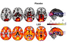 In a world-first, scientists in the UK have imaged the effects of LSD on the human brain, and we now have an unprecedented view into the effects of one of the most powerful drugs ever created . These images not only reveal that the potent...