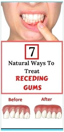 7 Natural Ways To Treat Receding Gums Gum Inflammation, Swollen Gum, Receding Gums, Dental Problems, Keto, Best Oral, Oral Health, Health Care, Dental Health